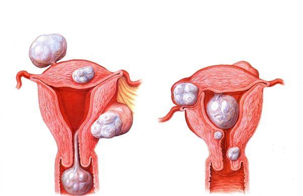 Fibrom uterin