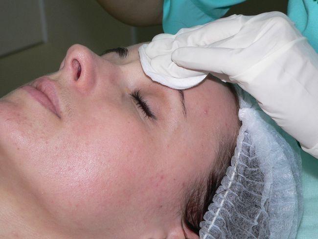 Wen tratament facial îndepărtarea mecanică