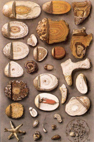 diferite tipuri de pietre în urolitiază