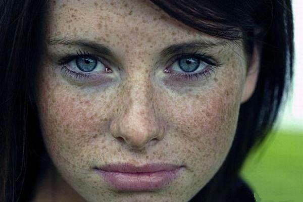 Petele maronii de pe fata: tipurile și cauzele