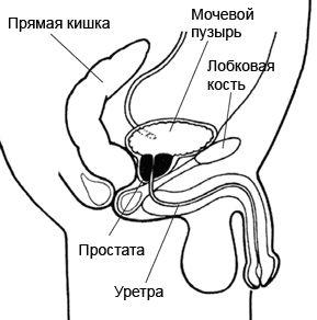 Foto Locul de amplasare de prostată